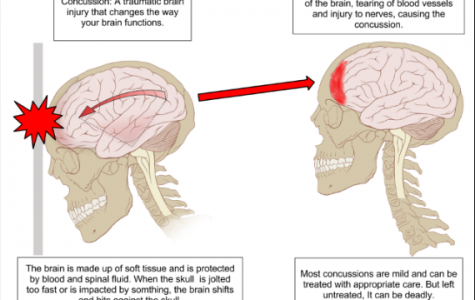 Concussions… A Heady Subject
